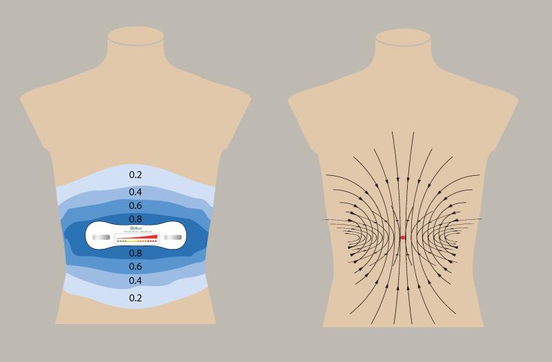 Prinzip einer BIAvi Viszeralfett-Messung